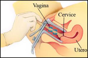 Pap test e prevenzione per il cancro